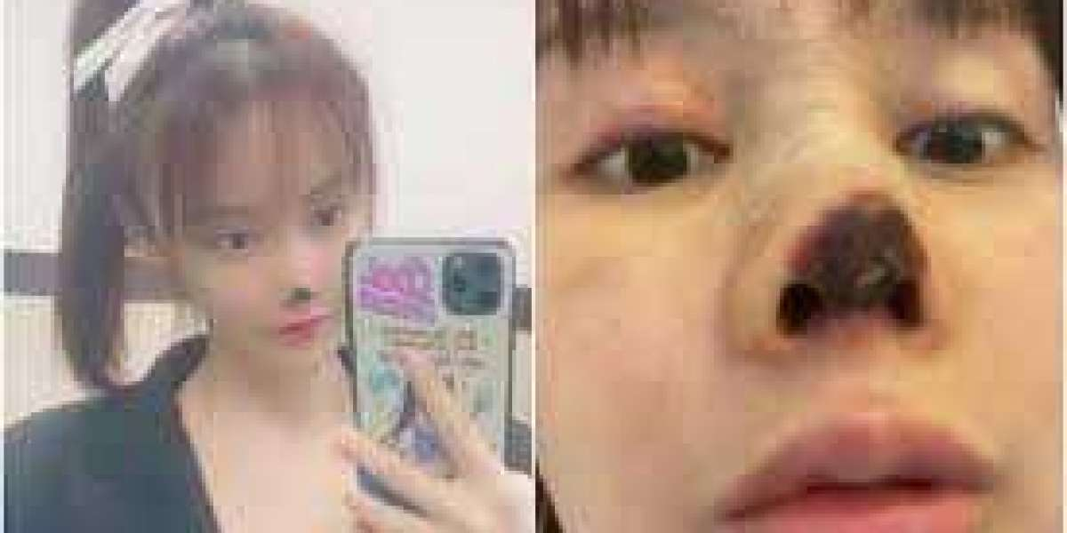 Top Chinese actress Gao Liu shares photos of her decaying nose as she warns against effects of plastic surgery (photos)